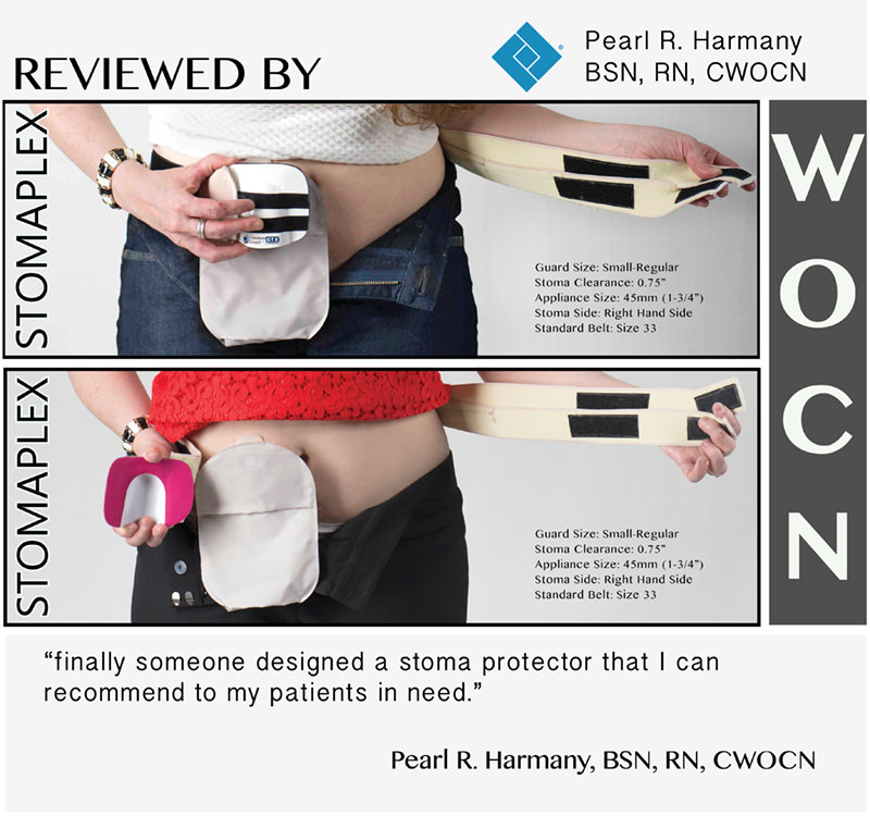 Ostomy Belt: Stoma Belt and Stoma Guard for all ostomy bags and ostomy types such as ileostomy, colostomy, and urostomy.  Protect your ostomy stoma with a stoma guard belt by Stomaplex.